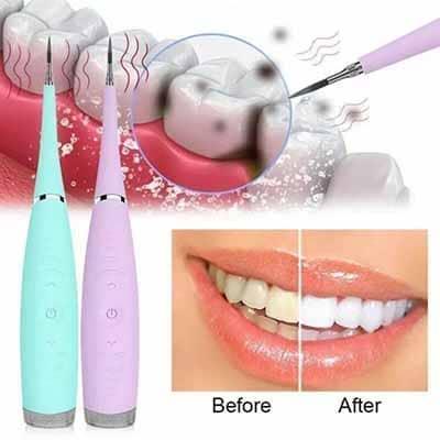 Tìm hiểu về máy lấy cao răng và các công dụng