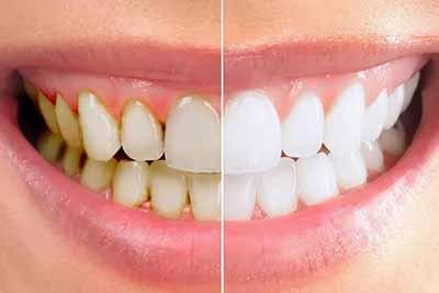 Cao răng là gì