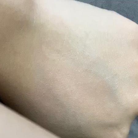 Khả năng nâng tone da của Decumar